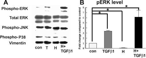 Hypoxia inhibition of TGFβ1-induced α-SM actin is independent of MAPK activation. A: Whole cell lysates were collected 4 h after treatment and assayed by western blot for pERK, total ERK, pJNK, and phospho-p38 as indicated. Vimentin was used as a loading control. B: The bar graph shows the relative increase of pERK in each group over the control. Error bars represent standard error of the mean (n=3). The asterisk indicates that the indicated groups were significantly different from control (p<0.05).