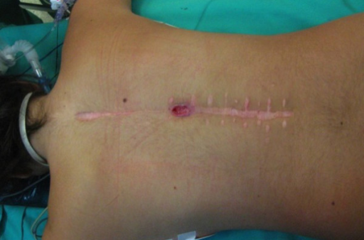 a palpable mass close to surgical wound and a small ski open i