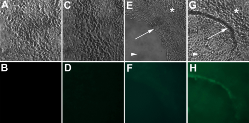 CD271 stem cell marker expression in C918 uveal melanoma cultures. The upper row of pictures demonstrates the morphology of two-dimensional (2D; A and C) and three-dimensional (3D; E and G) cultures of C918 uveal melanoma with the formation of prominent VM in 3D cultures. Arrows in E and G point to VM. Asterisks in E and G point to cells growing in monolayer on the Matrigel surface. Arrowheads in E and G point to cells growing on the bottom of the culture dish. Panel H demonstrates detection of CD271 expression by VM-forming tumor cells by immunofluorescence in 3D cultures. No CD271 expression was detected in 2D cultures (D). CD271 expression was also not detected in control 2D and 3D cultures where no primary antibody was used (B and F). Magnification: 200×.