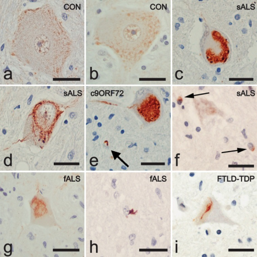 RBM45 distribution in spinal cord by light microscopy. Representative sections are shown from lumbar spinal cord sections from control, ALS and FTLD-TDP patients stained for RBM45 and counterstained with hematoxylin. a, b Motor neurons from control subjects show a punctate staining of the nucleus and cytoplasm. c–e Motor neurons from ALS patients, including a C9ORF72 case in e, contain RBM45-positive inclusions with globular, skein-like and neuritic morphology. Arrow in e indicates a glial inclusion. f Two glial inclusions from a sporadic ALS patient are shown (arrows). g RBM45 positive inclusions were also detected in the motor neurons of non-SOD1, non-C9ORF72 fALS cases. h Glial inclusions are also observed in fALS. i Spinal cord motor neuron of FTLD-TDP case containing skein-like RBM45 inclusion. All images are taken at ×40 magnifications. Scale bars equal 30 μm. Panels represent the following case numbers in Table 1: a 37, b 39, c 2, d 2, e 3, f 13, g 23, h 21, i 24