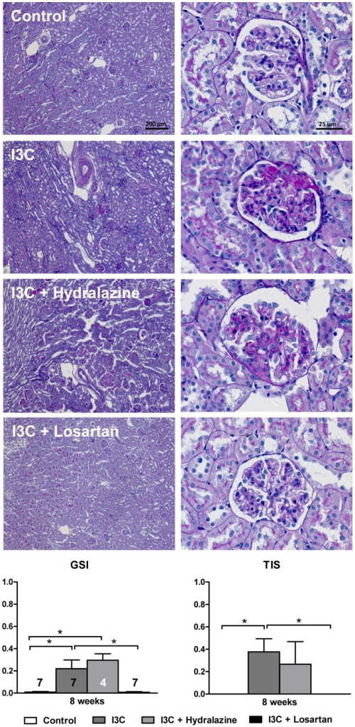 Effects of anti-hypertensive treatments on renal injury.Four weeks of RAS-stimulation caused a significant increase in renal pathology, which is reflected by the GSI and TIS. AT1R-blockade completely prevented this, whereas hydralazine had no effect. The n for each group is presented in the bars of the GSI. I3C, Indole-3-Carbinol; GSI, glomerulosclerosis index; TIS, tubulointerstitial score.