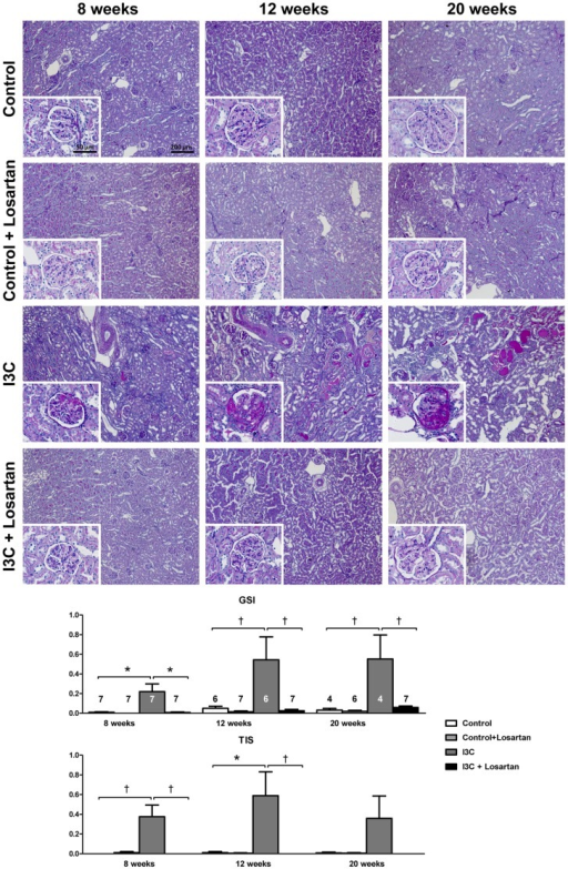 Long-term effects of AT1-receptor blockade on renal injury.Four weeks of RAS-stimulation induced irreversible renal damage. Despite high levels of circulating RAS-components, supplementary AT1R-blockade was able to completely prevent the development of renal pathology over time. The n for each group is presented in the bars of the GSI. GSI, glomerulosclerosis index; I3C, Indole-3-Carbinol; TIS, tubulointerstitial score.