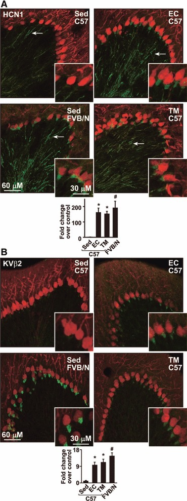Higher HCN1 and KVβ2 levels in the cerebellar pinceau of protected mice. Labelling of HCN1 (A) and KVβ2 (B) in the cerebellar pinceau of kainate-injected and exercised C57BL/6 and sedentary FVB/N mice, which show higher resistance to glutamatergic toxicity (green ∇ HCN1 or KVβ2, red ∇ calbindin-28K, n ∇ 6 for each group, insets show the pinceau region). Semi-quantification is based on percentage of HCN1 and KVβ2 immunoreactive stained areas. Control values were 0.04% and 0.4%, respectively. (*P < 0.0005 in comparison to sedentary C57BL/6 mice, post-hoc analysis after one-way ANOVA, #P < 0.005 in comparison to sedentary C57BL/6 mice, Student's t-test. Arrows indicate staining outside the pinceau).