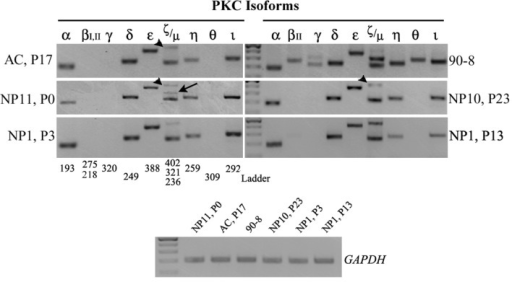 PKC isoform expression in human NP cells of early or late passage.Representative images of RT-PCR results for PKC isoform profiling demonstrate an indistinguishable profile amongst various NP samples and cell passages (NP11, P0; NP10, P23; NP1, at P3 and P13), and AC cells (AC, P17) in culture, with the exception of the ζ isoform, which appears at a slightly different molecular size (402 versus 321 - arrowheads versus arrows). The MPNST 90-8 cell line which expresses all the PKC isoforms but βI, served as a positive control. For each sample, the expression of each gene was examined using identical amounts of cDNA template, as for the housekeeping GAPDH (shown at the bottom row). The ladder used was the GeneRuler 100 bp (NEB), where the intense band corresponds to the 500 bp size.