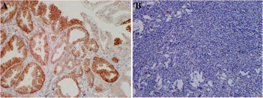 Immunohistochemical staining of tissue from a 79-years old man with extrahepatic cholangiocarcinoma (A) and a 66-years old woman with Xanthogranulomatous chlecystitis as control group (B). Immunostaining of LAT1 demonstrates a membranous immunostaining pattern in cholangiocarcinoma, but there was no evidence of LAT1 staining in xanthogranulomatous chlecystitis.