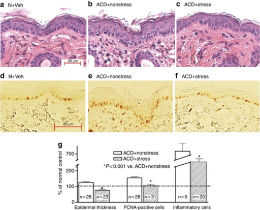 Stress reduces epidermal hyperplasia and inflammation in acute allergic contact dermatitis (ACD) mice. (a–c) Representative hematoxylin and eosin sections of normal or ACD mice, with or without superimposed stress. (d–f) Proliferating cell nuclear antigen (PCNA) immunostaining in parallel sections (see a–c). (g) Quantification of epidermal hyperplasia (thickness) of nucleated cell layers, PCNA+cells (PNA+cells/unit length of basal layer), and inflammatory cell density/mm2. Bar=20 μm.