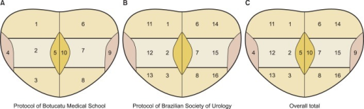 Biopsy protocols: Protocol of Botucatu Medical School with 10 cores (A) - Protocol of Brazilian Society of Urology with 12 cores (B) - Overall total with 16 cores (C). 1, right base; 2, right middle third; 3, right apex; 4, latero-lateral right; 5, right medial; 6, left base; 7, left middle third; 8, left apex; 9, latero-lateral left; 10, left medial: 11, right base; 12, right middle third; 13, right apex; 14, left base; 15, left middle third; and 16, left apex.