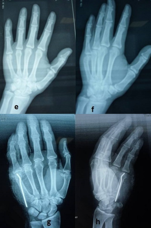 e,f): Radiograph of a 28 years old male patient with d | Open-i