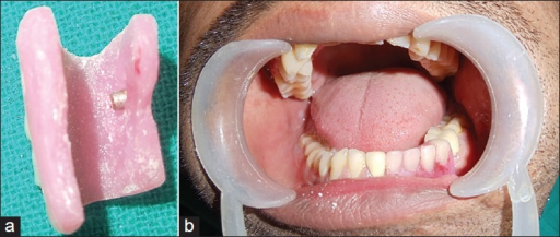 (a) Counter magnet placed in the removable component (b) Postoperative view showing removable component placed over the cemented fixed component