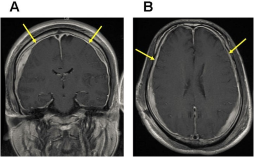 Typical MRI manifestation of dural enhancement.T1-weighted MRIs with gadolinium enhancement shows dural enhancement in coronal (A) and horizontal (B) images (arrows).