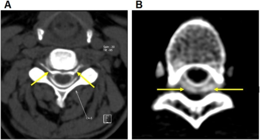 CT myelography for evaluating dural leakage.CT myelography shows contrast tracking along bilateral nerve roots (A, arrows) and collections of contrast within the paraspinal soft tissue (B, arrows). Images taken at segments C4-5 (A) and T5-6 (B).