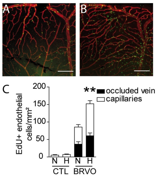 Hypoxia induced endothelial cell proliferation in control and BRVO retinas.(A and B) Representative micrographs of EdU (green)—CollIV (red) double-labeled retinal flatmounts at 7d after BRVO raised in normoxia (A) or hypoxia from d3 to d7 (B). All mice were daily injected with EdU from d3 to d7 before sacrifice (please not that retinas in Fig 2 were injected daily with EdU and are therefor not comparable in terms of numbers of EdU+cells). (C) Quantification of EdU positive ECs of the superior vein and upstream capillary bed at d7 of control retinas (without BRVO) and BRVO retinas, raised in normoxia and hypoxia. All mice were daily injected with EdU from d3 to d7 before sacrifice. Values in histograms are mean ± SEM of mRNA expression of occluded area from 9–10 retinas per group. Mann-Whitney non parametric test, ** p<0.01, normoxic BRVO versus hypoxic BRVO. Scale bars AB = 200μm.