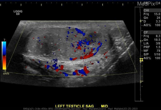 Color Doppler reveals flow within the intratesticular masses.