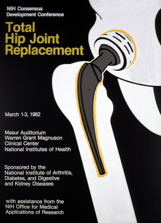<p>Black poster with white hip and leg bones, also showing the ball and socket.  The print for the title is in a mustard color.</p>