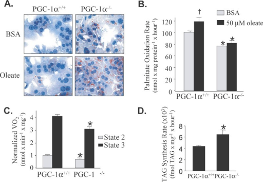 Hepatocytes Isolated from PGC-1α−/− Mice Exhibit Reduced Oxidative Capacity(A) Oil red O staining of isolated hepatocytes exposed to BSA alone (BSA) or 50 μM oleate complexed to BSA (oleate).(B) 3H-palmitate oxidation rates. 3H-palmitate oxidation rates determined in hepatocytes isolated from PGC-1α+/+ and PGC-1α−/− mice under cell culture conditions containing BSA or BSA + 50 μM oleate (2:1 oleate/BSA ratio). Values were derived from ten sets of triplicates for each group using hepatocytes from 5 mice of each genotype. The bars represent mean oxidation rates (n = 100) normalized to the condition of PGC-1α+/+ in BSA alone. * p < 0.05 compared to the corresponding PGC-1α+/+ mice. † p < 0.05 compared to PGC-1α+/+ with BSA treatment.(C) State 2 and 3 respiration rates determined for hepatocytes isolated from PGC-1α+/+ (n = 3) and PGC-1α−/− (n = 3) mice using succinate/rotenone as a substrate. * p < 0.05 compared to corresponding PGC-1α+/+.(D) TAG synthesis rates in isolated hepatocytes. The bars represent mean TAG synthesis rates (glycerol incorporation, see Materials and Methods) for hepatocytes isolated from PGC-1α+/+ (n = 6) and PGC-1α−/− (n = 6) mice. * p < 0.05 compared to the corresponding PGC-1α+/+ condition.