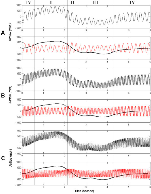 Simulated respiration, spontaneous airflow signals and HFCC airflow signals. The frequencies of HFCC were set (a) 5 Hz, (b) 15 Hz, and (c) 21 Hz. Definitions for Phases I, II, III, and IV in this figure are the same as those in the text and fig. 5.