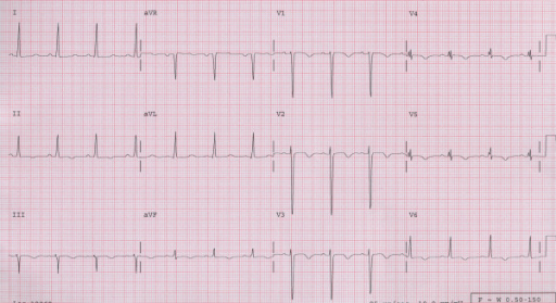 Electrocardiogram showing diffuse T wave inversions.