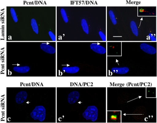 Pcnt colocalizes to basal bodies with IFT proteins and PC2, and Pcnt silencing mislocalizes IFT proteins and PC2 from basal bodies and centrosomes. (a–c′′) IFT57 (a–b′′ red) and PC2 (c–c′′, red) are mislocalized from basal bodies in RPE1 cells with reduced Pcnt (b–b′′, arrows; c–c′′, green, small arrows), but not in RPE1 cells treated with lamin siRNAs (a–a′′; bar, 10 μm) or in the cell with control level of Pcnt (c and c′′, bottom). Insets: higher magnification of a′′, b′′, and c′′ as indicated by arrows. DNA, blue.