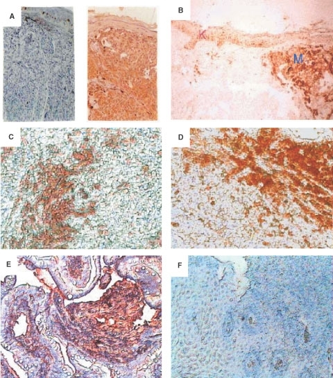 Immunohistochemical detection of MC1R on primary melanoma tissues, normal keratinocytes and metastatic melanoma tissues. Paraffin sections of primary melanoma tissues and normal skin tissues and metastatic melanoma tissues were stained with mAb MP1-1B7 or IgG control followed by a biotinylated anti-Ig mAb and developed as described in Materials and Methods. (A) normal naevus 10× (left) and primary melanoma (right) (B) Comparison of the intensity of labelling between a primary melanoma (M) and keratinocytes (K)×10. (C) Melanoma infiltrated lymph node (MP1-1B7)×10. (D) Maxilar metastasis (MP1-1B7)×10. (E) Intestinal metastatic melanoma (MP1-1B7)×10, and (F) Intestinal metastatic melanoma (Ig negative control)×10. In panels A, E, and F, nuclear staining was performed using haematoxylin solution.