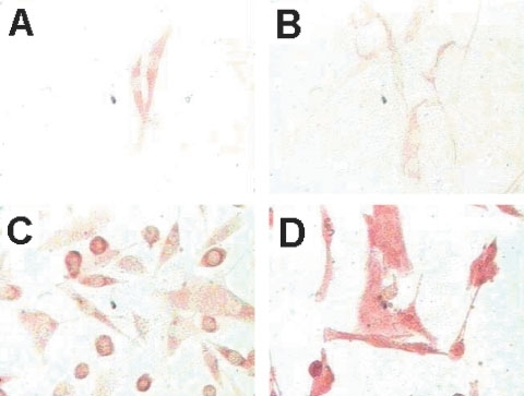 MC1R is overexpressed on melanomas and low expressed in in vitro cultured melanocytes. Melanoma, normal melanocytes cells and control COS7 cells were cultured on an objective glass overnight, carefully washed with PBS and then fixed with methanol. The fixed cells were stained with mAb MP1-1B7 or IgG control followed by a biotinylated anti-Ig mAb and developed as described in Materials and Methods. (A and B) Normal melanocytes, (C) FM55 melanoma line, and (D) FMS melanoma line.