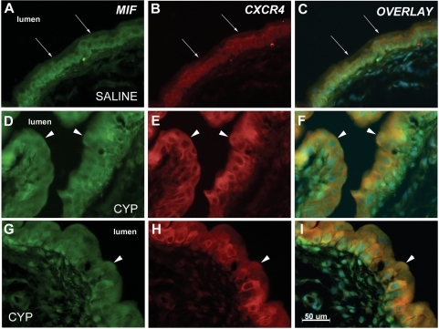 Co-localization of CXCR4 and MIF in urothelium.Representative sections from rats treated with saline (A–C) or CYP (D–I) are shown. The figure shows MIF immunostaining (green immunofluorescence), CXCR4 immunostaining (red immunofluorescence) and an overlay panel combining both immunostaining and a DAPI nuclear stain. MIF immunostaining is seen in basal and intermediate cells and in fibroblasts in the lamina propria of saline treated rats (A), while superficial cells do not stain for MIF. Arrows show luminal edge of urothelium. CXCR4 is restricted to basal and intermediate cells of urothelium (B) and lamina propria is not stained. Overlay of these panels (C) demonstrate co-localization of MIF and CXCR4 as orange coloring of cells. CYP treatment resulted in superficial cell staining for MIF (D,G) and CXCR4 (E,H) and overlay panels (F,I) demonstrate co-localization as orange color in urothelial cells. Arrows point to superficial cells showing MIF-CXCR4 co-localization. Calibration bar = 50 µm.