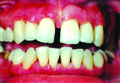 Clinical view of anterior region of the oral cavity after the treatment for aggressive periodontitis showing acute streptococcal gingivitis.