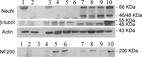 Analysis of the expression of NeuN, NF-200 and β-tubulin III by Western Blot. Lanes: 1) non-induced NIH 3T3; 2) chemically-induced 3T3; 3) non-induced MSC; 4) serum-free MSC; 5 and 6) chemically-induced MSC for 8 h; 7, 8 and 9) freshly extracted bone marrow mononuclear cells; 10) brain tissue (positive control).Actin (43 KDa) was used as an internal control.