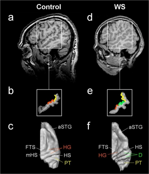 Anatomical landmarks of the auditory cortex.Auditory cortex (AC) of one control person (a–c) and one WS subject (d–e). Sagittal MR image at TAL x = 50 (a,d: left side of the image is the anterior part of the brain). Segmented STG (b,e) including Heschl's gyrus (HG; marked orange), planum temporale (PT; marked yellow) and two posterior duplications of HG in the WS subject (D; marked green). Three-dimensional surface reconstruction of right AC (c,f) reveals anatomical features and individual peculiarities such as D (f) or medial Heschl's sulcus (mHS; c). FTS =  first transverse sulcus; HS =  Heschl's sulcus; aSTG =  anterior superior temporal gyrus.