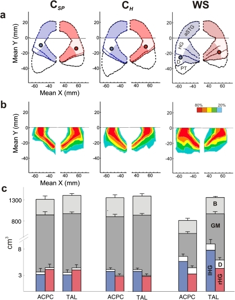 Increased gray matter volume of the auditory cortex and higher incidence of posterior duplications in WS subjects.(a) Averaged individual AC landmarks and MEG dipoles (filled circles) (b) Probability maps of HG including local duplications anterior to the first complete Heschl's sulcus. The number of overlapping voxels is color coded, i.e. red means that >80% of the brains overlapped in this voxel. (a,b) Plots in xy-Talairach (TAL) stereotaxic coordinates. (c) Morphometry of whole brain (B, light grey), grey matter (GM, medium grey), left HG (blue) and right HG (red) before and after normalization. ACPC =  plane of anterior and posterior commissure; a =  anterior; p =  posterior; r =  right; l =  left; aSTG =  anterior supratemporal gyrus; HG =  Heschl's Gyrus; D =  complete posterior HG duplication; PT =  planum temporale; B =  total brain volume; GM =  gray matter.