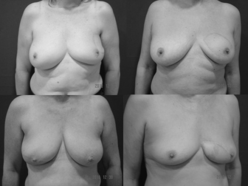 Long-term aesthetic results of OVR used in the four quadrants of the breast.
