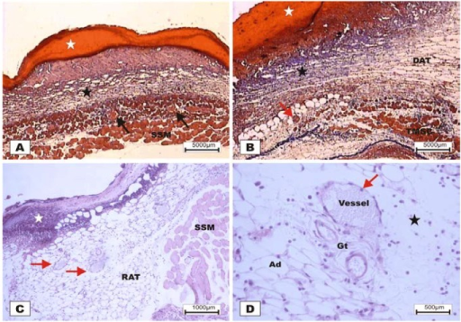 Photomicrographs of surgically induced skin wounds in mice treated with a topical administration of BSA and BSL in POD 2 (Stain: hematoxylin-eosin and Masson's trichrome). (A) (BSA). Note the presence of a scab (white star) covering the wound and intense inflammatory exudate. Below the exudate, a collagenolysis area and edema of the reticular dermis are observed (black star). Immediately below the dermis is the subcutaneous muscle layer with congested vessels (arrows). A 4× objective was used; (B) (BSA). Note the presence of a thicker crust (white star) covering the wound bed and a less-intense inflammatory exudate. Below the exudate, a collagenolysis area, edema of the reticular dermis and intense inflammatory infiltrate are observed (black star) with degeneration fatty tissue (DAT). Note the muscle fibers spaced by muscle tissue and fat cells with congested vessels near the collagenolysis area (red arrow). A 4× objective was used; (C) (BSL). A thick scab covers the wound bed (white star). Note the congested vessels of the granulation tissue (arrow) in the reactional adipose tissue (RAT). A 10× objective was used; (D) (BSL). Detail from the previous photo showing vessels of the granulation tissue in areas of intense inflammatory exudate (star). Observe the possible diapedesis of the neutrophil PMNs into the inflamed area (red arrow). A 40× objective was used.