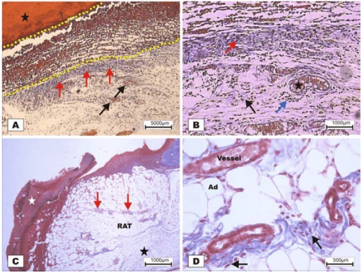 Photomicrographs of surgically induced skin wounds in mice treated with a topical administration of BSA and BSL in POD 7 (Stain: Masson's trichrome). (A) (BSA). Note the presence of a scab (star) covering the wound bed and intense inflammatory exudate (delimited by dashed yellow lines). Below the exudate, observe the area of granulation tissue with congested vessels (arrow) and intense fibroblastic proliferation. Immediately beneath the inflammatory exudate, note the bluish band resulting from the synthesis of collagen (red arrows). A 4× objective was used; (B) (BSA). Details of the granulation tissue. Note the fibroblastic proliferation (arrow) and mild inflammatory infiltrate around the vessels (blue arrow). Note the collagen above the range of the granulation tissue (red arrow). Vessels of the granulation tissue are observed (star). A 10× objective was used; (C) (BSL). Overview of the injured area. Note the presence of a crust sealing the epithelial opening (white star). Vessels of the granulation tissue in the reactional adipose tissue (RAT) surrounded by thickening collagen fibers (arrows) resulted from intense fibroblastic synthesis. An area with a mild inflammatory exudate is observed (black star). A 10× objective was used; (D) (BSL). Detail from the previous photo showing the area of granulation tissue vessels surrounded by active collagen. Note the active fibroblasts in the area (arrows). A 40× objective was used.