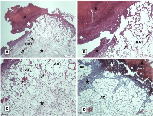Photomicrographs of surgically induced skin wounds in mice treated with a topical administration of 150 mM NaCl in POD 7 (Stain: hematoxylin-eosin and Masson's trichrome). (A) (NaCl). Open wound with a thick scab and dystrophic calcification (white star) sealing the epithelial opening (S). Observe the beginning of granulation tissue formation originating from the reactional adipose tissue (RAT), and note the presence of congested vessels (arrows) and the area of inflammation (star). A 4× objective was used; (B) (NaCl). Details showing the congested vessels in fat tissue (arrows) and the inflammatory infiltrate beneath the crust (star). A 10× objective was used; (C) (NaCl). Details of the area of acute inflammation in the degenerative adipose tissue (star) and the granulation tissue vessels above the inflamed area (arrows). A 10× objective was used; (D) (NaCl). Observe the inflammatory exudate beneath the crust (white star). There is poor collagen deposition and poor formation of granulation tissue in the dermis (black star) between the areas of adipose tissue. A 10× objective was used.