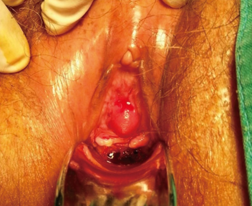 urethral mass female