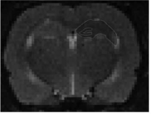 T2W images showing placement of the ROI delineating the hippocampus and specifically the dentate gyrus in the rat brain. The ROI was placed on two consecutive coronal brain slices. A mean ADC was measured using MIPAV.