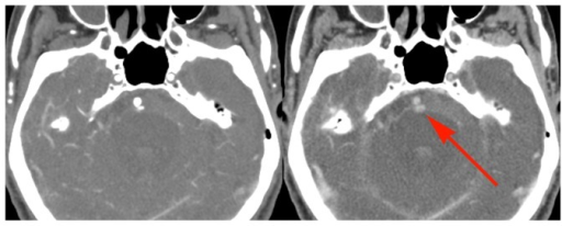 Example of active bleeding from a ruptured aneurysm.86 year old male with two day history of lethargy with progressive stroke like symptoms. Early and delayed phase CTA images show subarachnoid hemorrhage with a 2(red arrow), consistent with active bleeding. Because of the patient's poor prognosis, and in adherence with his wishes, no intervention was performed. The presence of active bleeding on the delayed views did not change this management decision.