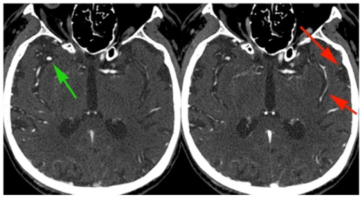 Example of delayed collateral vessels filling beyond a proximal occlusion.83 year old male with atrial fibrillation and acute stroke. Early phase images show occlusion of the proximal M1 segment of the left MCA and robust opacification of the anterior division of the right MCA (green arrow). Delayed phase images show opacification of several pial vessels over the left temporal convexity and in the left Sylvian fissure (red arrows), delayed because of pial-pial collateral flow beyond the occlusion. Note that normal vessels demonstrate reduced opacification compared with the initial phase images (green arrow); this is due to decreased contrast concentration as a result of recirculation of the initial bolus. This CTA was obtained after MRI demonstrated the extent of MCA territory infarction; no management decisions were changed as a result of the delayed views.