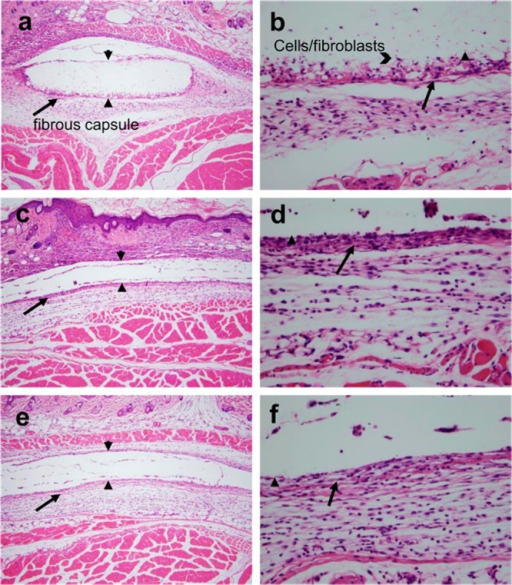 Histological (H&E) specimens of harvested subcutaneous mousetissue surrounding implanted nonsuperhydrophobic meshes and filmsafter 4 weeks. PLGA mesh at (a) 10× and (b) 40× magnifications.PLGA film at (c) 10× and (d) 40× manifications. NonsuperhydrophobicPLGA + 30% PLA–PGC18 (60:40) film/melted mesh at(e) 10× and (f) 40× magnifications.