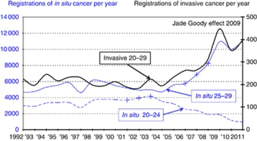 Registrations of in situ (CIN3) and invasive carcinoma of the uterine cervix in England: women aged 20–29 years in England 1992–2011 (Office for National Statistics data). '+', Women born 1977–1981, 1978–1982 and 1979–1983.