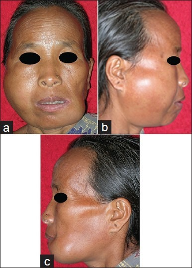 Frontal picture (a) showing swelling on the right maxilla and left mandible, right profile picture (b) with maxillary swelling and left profile picture (c) with mandibular swelling