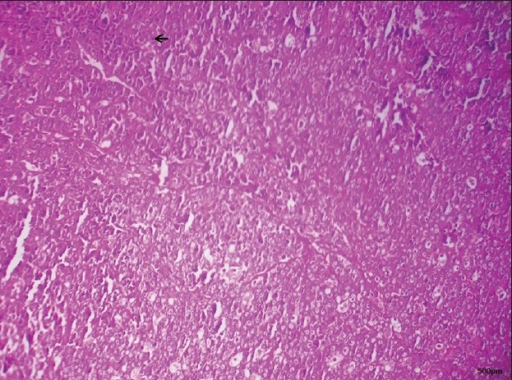 H and E stained section show epithelium and connective tissue. The lesion is composed of atypical cells similar to hepatocytes, having eosinophilic granules in the cytoplasm