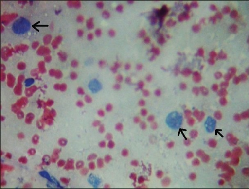 Ultrasound-guided fine needle aspiration cytology taken from the liver revealed pleomorphic malignant appearing hepatocytes (arrows)