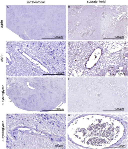 Immunhistological staining of agrin (A-D) and alpha-dystroglycan (E-H) in SE.Neither infratentorial SE (A, C, E, G, patient 5) nor supratentorial SE (B, D, F, G, patient 9) were positive for agrin or dystroglycan, normally found around the blood vessels (for positive control see supplement S3 Fig Bar 1000 and 50μm.