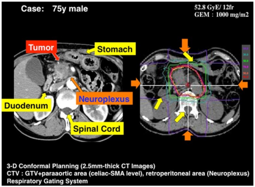 A typical treatment plan used at NIRS for a locally advanced pancreatic head cancer. The beam is shaped with passive modulation and four opposite fields are applied with respiratory gating. GTV includes the primary tumor and lymph nodes involved. CTV = PTV + neuroplexus infiltration (periarterial area) + proximal lymph nodes. PTV = CTV + 5 mm, excluding GI tract.