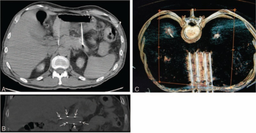 A, CT scan (axial view) showing 2 of the needles placed at the ends of the tumor. B, CT scan (coronal view) showing the 6 needles placed at the edge of the tumor (arrows). C, CT scan 3D (superior view) showing the 6 needles placed.