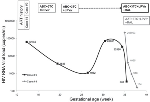 Examples of HIV RNA viral load evolution after raltegravir (RAL) initiation late in pregnancy. Case 4: a 33-year-old woman from Haiti who had recently immigrated to Canada was first seen at the authors' clinic at 35 weeks' gestation. A combination of zidovudine (AZT), lamivudine (3TC), boosted lopinavir (LPV/r) and RAL was immediately started. An elective Caesarean section was performed at 38 weeks, after intravenous zidovudine. At delivery, the HIV viral load was retrospectively found to be 154 copies/mL. Case 9: a 29-year-old First Nations iparous woman coinfected with hepatitis C with a history of substance abuse was first seen at 10 weeks' gestation. Because of tolerance and adherence issues, her viral load was 32,820 copies/mL at 34 weeks' gestation. She was admitted to hospital for supervised combination antiretroviral drug therapy (ART) containing RAL and received a total of seven days of this regimen. An emergent Caesarean section was performed at 35 weeks' gestation in the context of preterm labour, after an intravenous loading dose of AZT and a single-dose of oral nevirapine 200 mg. At delivery, her HIV viral load was retrospectively found to be 338 copies/mL. Both newborns were uninfected. ABC Abacavir