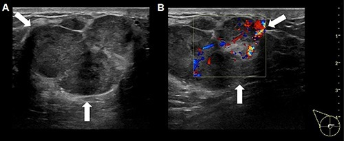 A hypoechoic mass with lobular appearance and hyperechoic diaphragms on ultrasound examination (A). Doppler examination reveals internal vascularity of the mass (B).