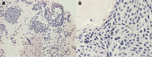 Nests of uniform round to slightly spindle cells (100×) in a fibrous tissue (A). Tumor cells (600×) contain round to oval hyperchromatic nuclei with occasional nucleoli. A mitosis is evident (B).