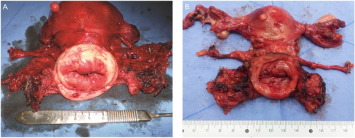 Surgical specimens of laparoscopic radical hysterectomy. (A) Surgeon A and (B) surgeon B.
