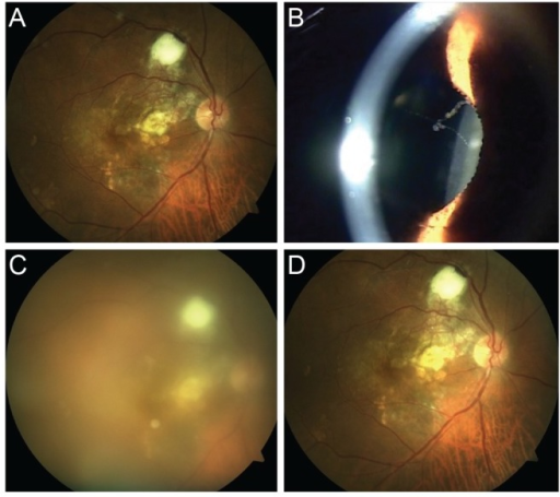 Fundus photo images and a slit lamp photo image of a 69-year-old male patient (case 1). (A) Baseline fundus photo image, taken prior to the eighth intravitreal aflibercept injection. (B) Slit-lamp photo image. (C) Fundus photo image on the day of presentation. (D) Fundus photo image after resolution of inflammation.